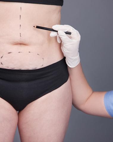 Dermatology Surgeries
