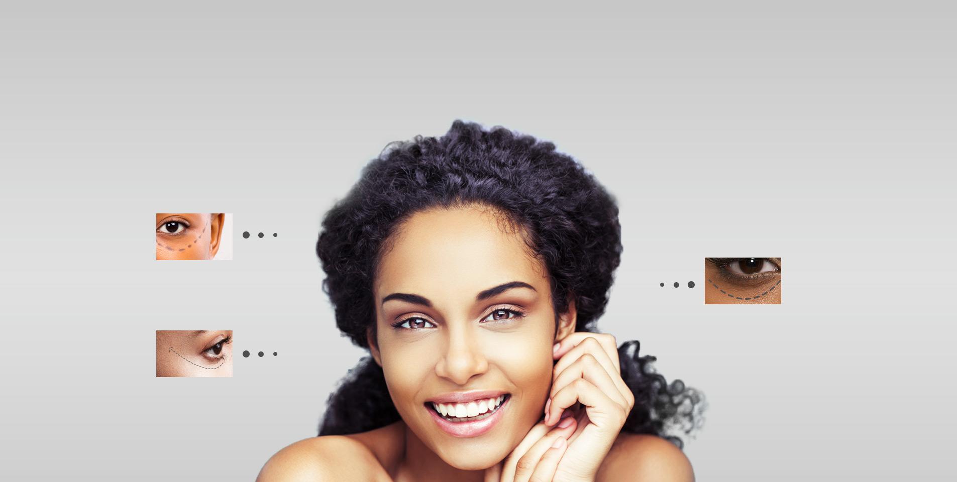 Eye-Lift Slide - Rao Dermatology