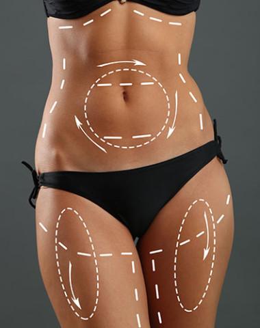 Edmonton Liposuction Clinic | Rao Dermatology