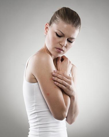 Mosquito Skin Care