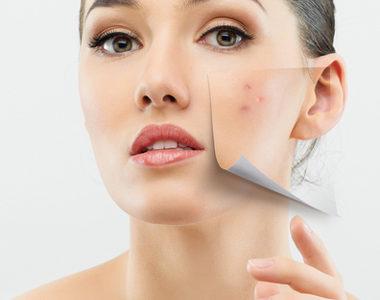 Skinceuticals Edmonton