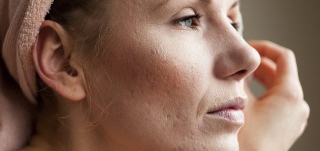 acne scarring treatment edmonton
